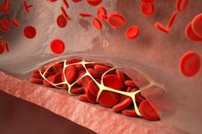 """血栓——一个游走于身体中的""""幽灵"""""""